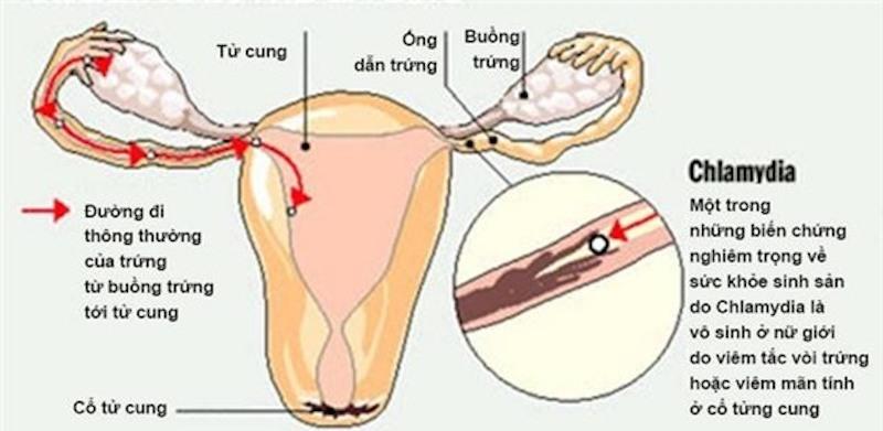 Nhiễm khuẩn Chlamydia