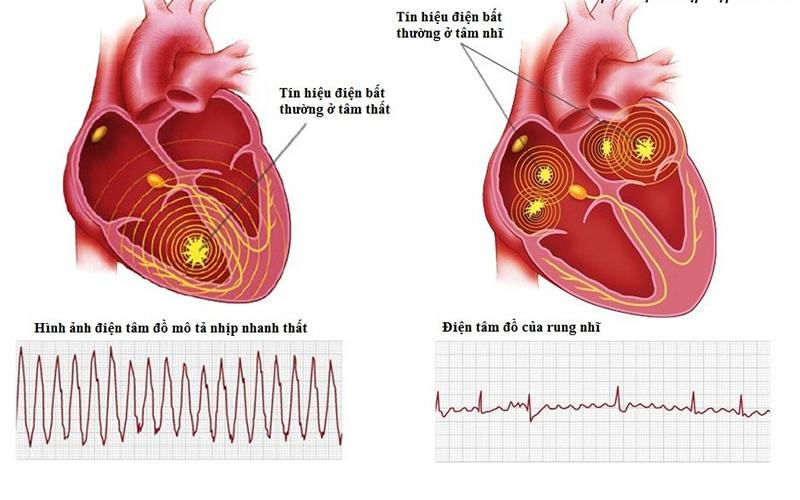 Rối loạn nhịp tim