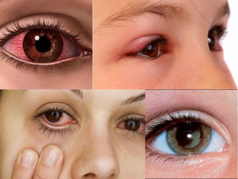 Viêm mắt dị ứng